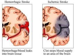 Stroke Obat Herbal Stroke Kronis